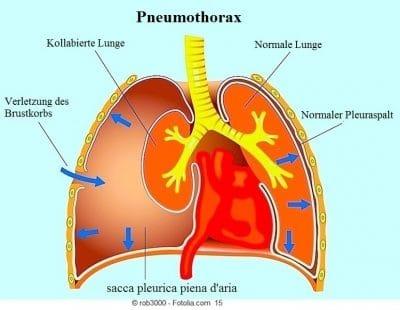 Pneumothorax, kollabierte Lunge