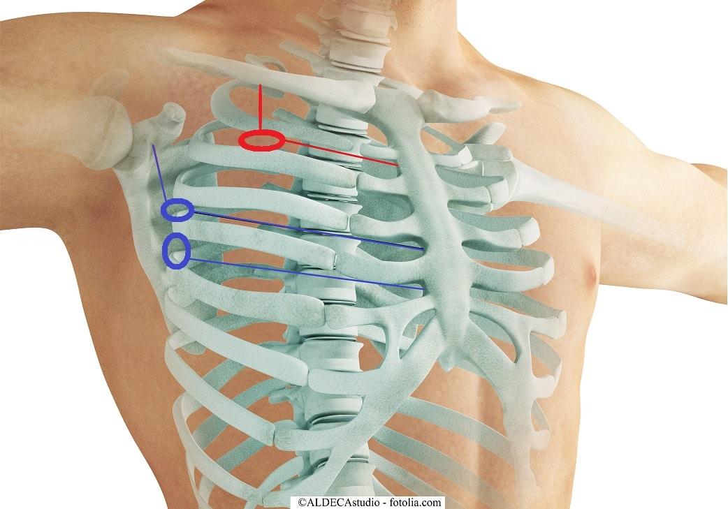 Zugang, Drainage, chirurgisch, Thorax