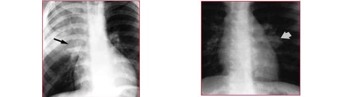 Röntgenbild,Tuberkulose,Spitze,links
