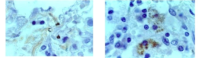 Tuberkulose,Untersuchung,Labor,Mikrobakterien,intakt