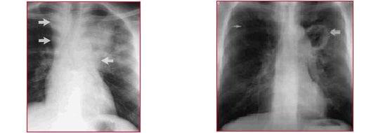 Tuberkulose,Röntgenbild,Lymphknoten,vergrößert