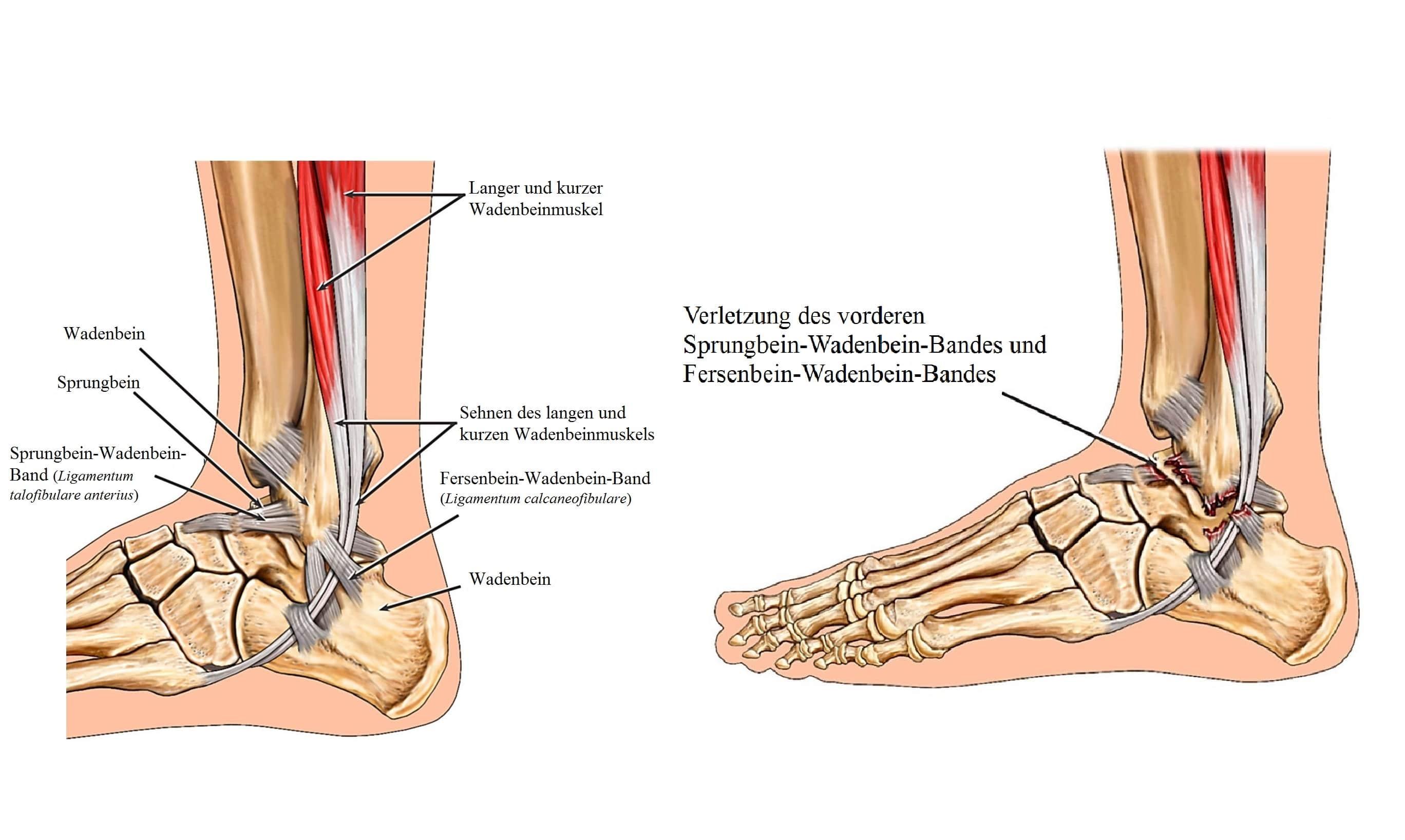 Anatomie, Wadenbein, Sprunggelenk, Knöchel - Symptome und Behandlung