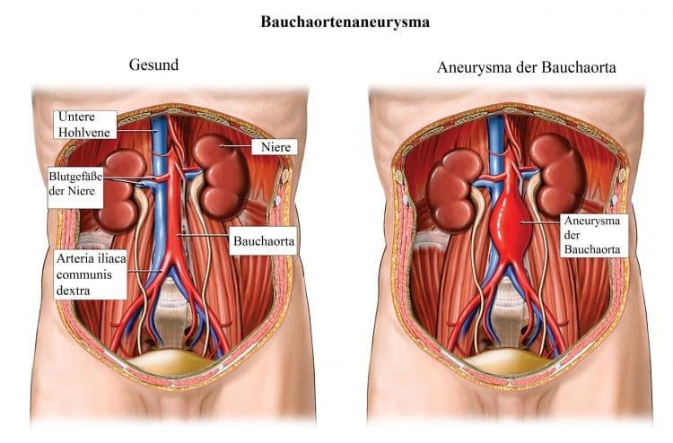 gynäkologische erkrankungen bauchschmerzen