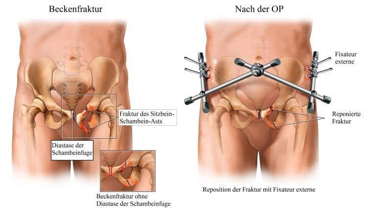 Beckenfraktur, Reposition, Diastase