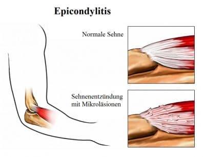 Epicondylitis, Sehnenentzündung, Mikroläsionen