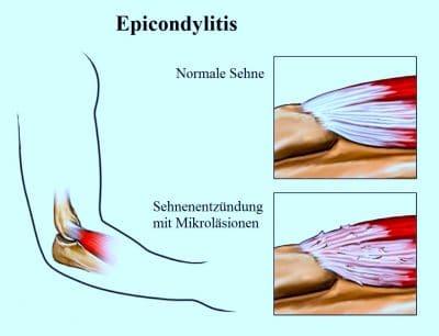 Epicondylitis, Sehnenentzündung. Mikroläsionen