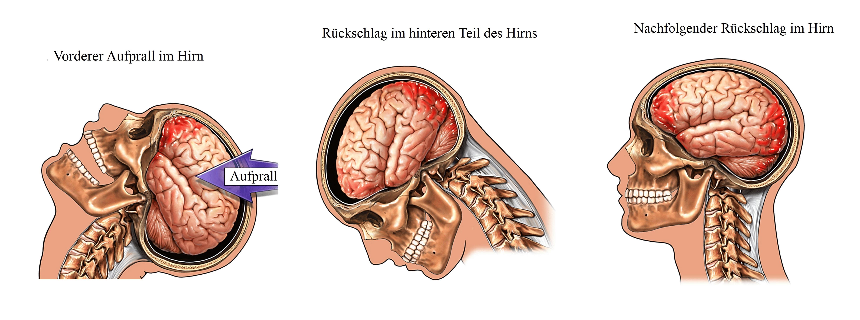 Ausgezeichnet Anatomie Des Schädels Und Des Gehirns Fotos ...
