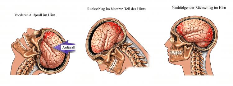 Gehirn, Schädel, Aufprall, Rückschlag