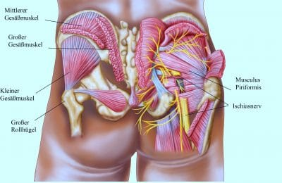 Gesäßmuskel Piriformis, Ischiasnerv