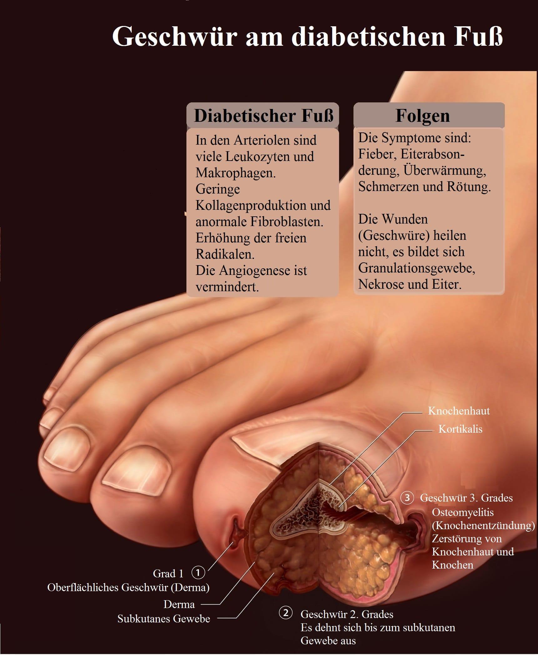Geschwür, Diabetischer Fuß, Folgen