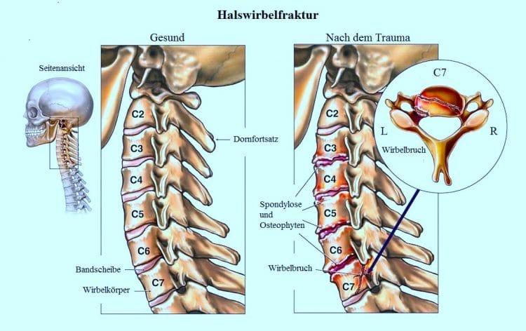 Halswirbelfraktur-Trauma-Spondylose