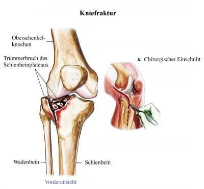 Kniefraktur, Trümmerbruch, Schienbeinplateau, Reposition