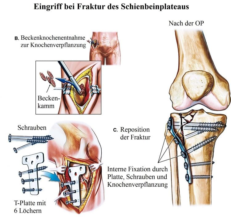 Ausgezeichnet Hinter Knie Anatomie Zeitgenössisch - Menschliche ...