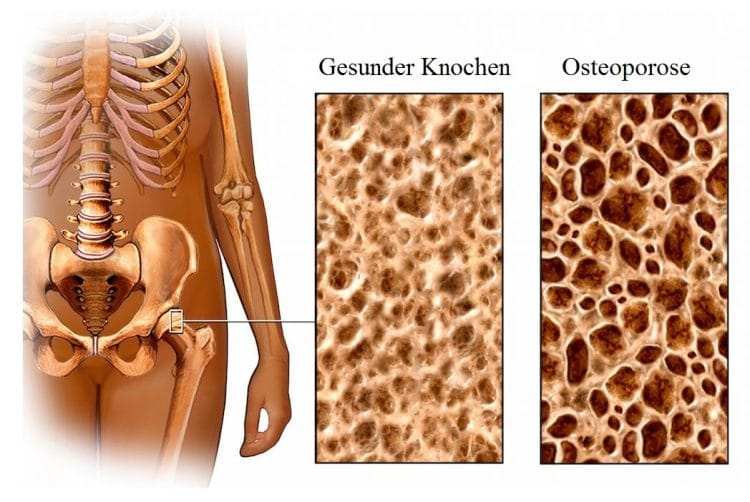 Knochen, Osteoporose