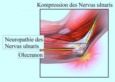 Kompression, Nervus ulnaris, Kubitaltunnel