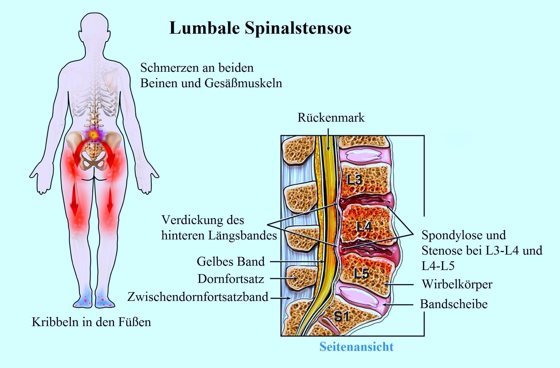 Spondylarthrose, Spondylose, Bandscheibenprotusion, Spinalkanalstenose