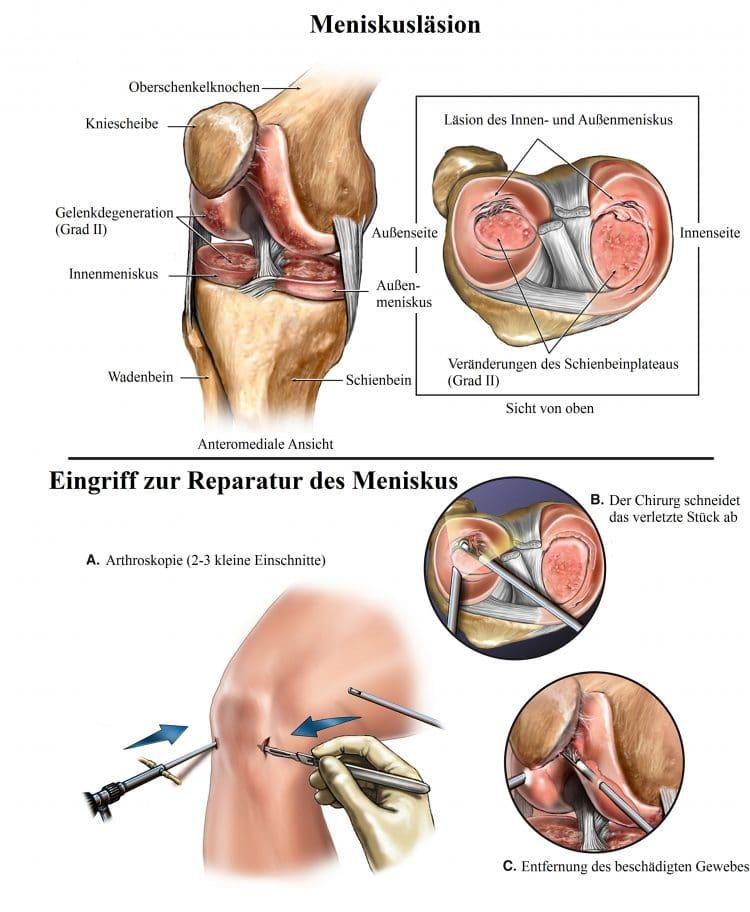 Meniskusläsion, Eingriff, Reparatur, Kniescheibe