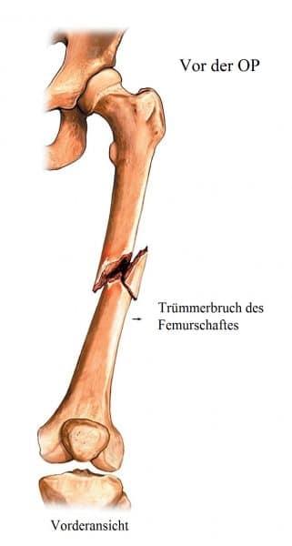 Operation, Femurfraktur, Marknagel, Zug