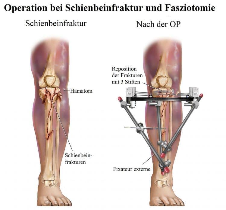 Operation-Schienbeinfraktur, Fasziotomie