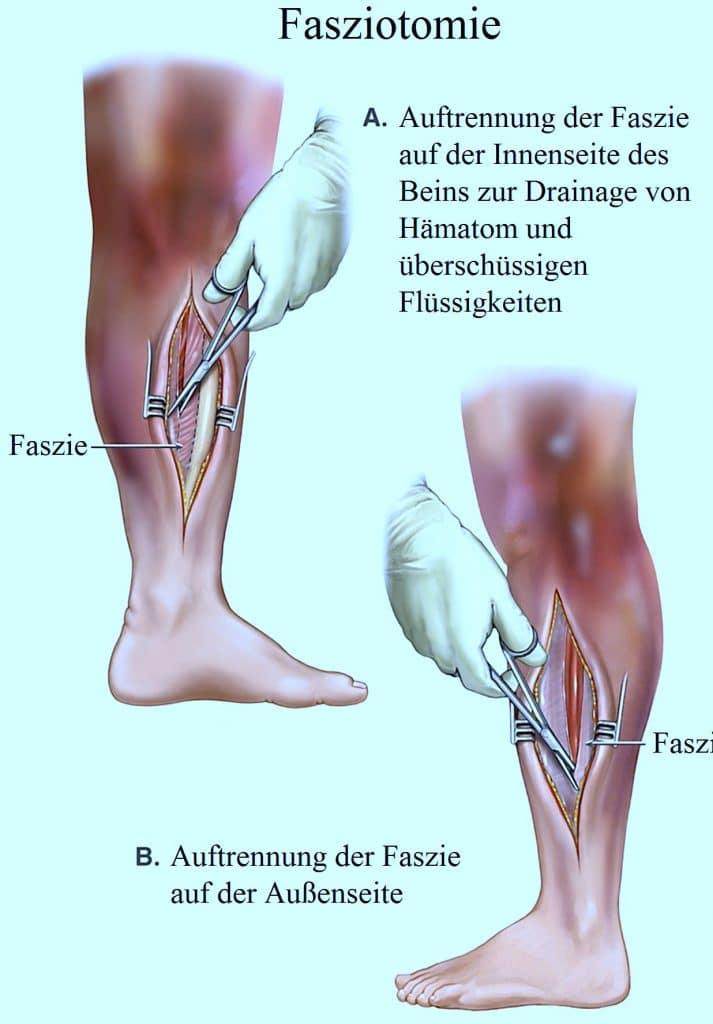 Operation, Schienbeinfraktur, Fasziotomie
