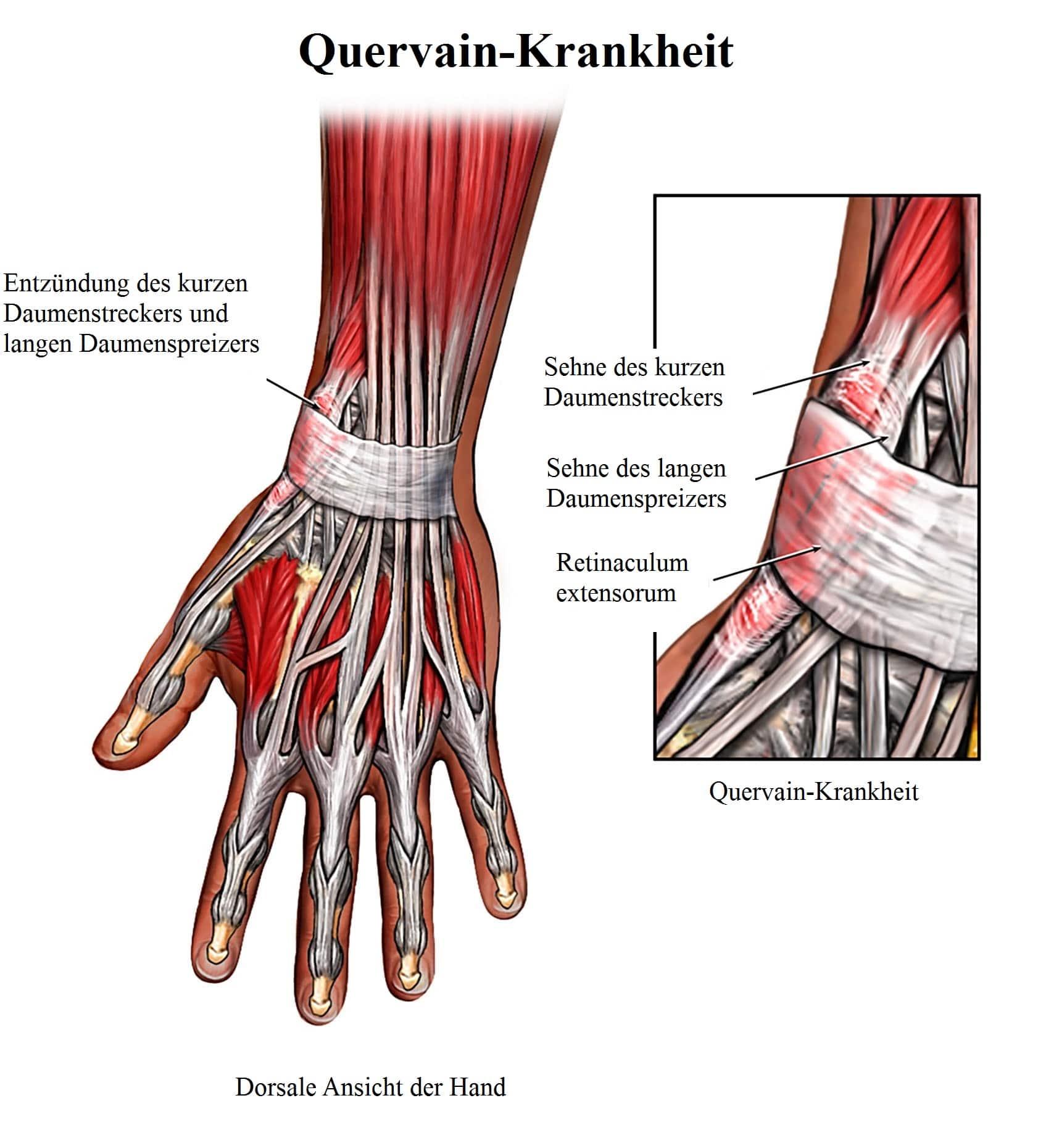 Entzündung der Beugesehnen, Hand, Therapie, Heilmittel