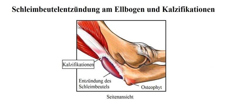 Schmerzen im Ellenbogen bzw. Schmerzen in der Ellenbogenbeuge loswerden