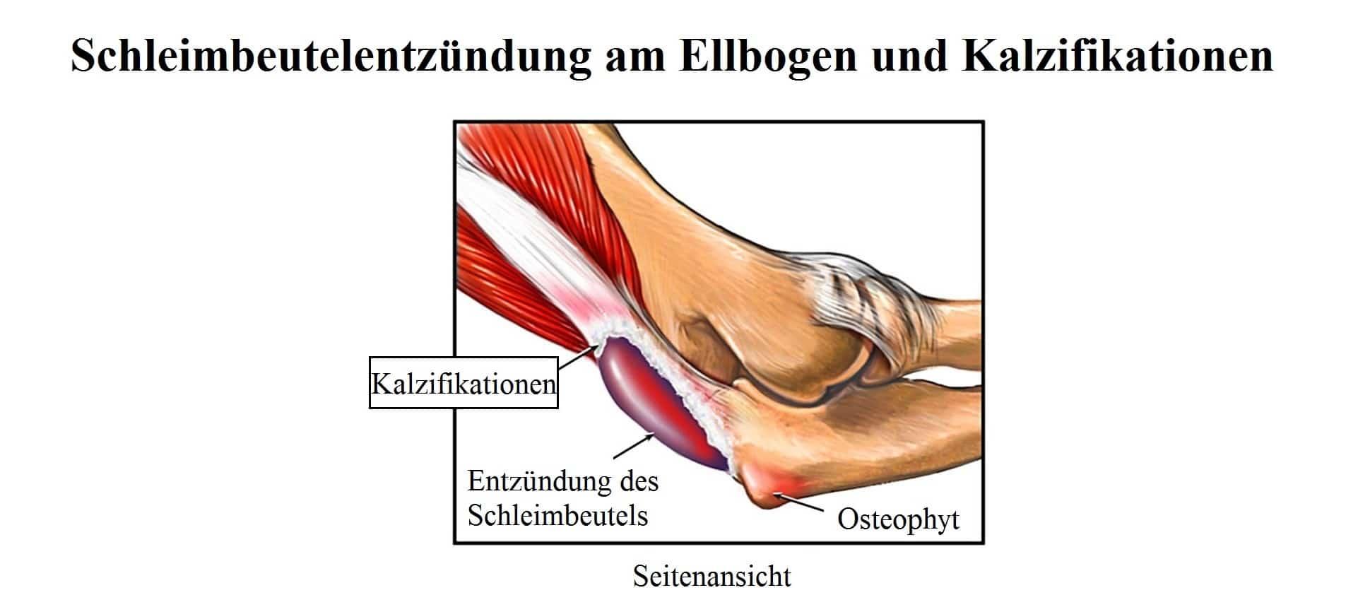 Schleimbeutelentzündung des Ellbogens, Symptome, Schleimbeutel ...