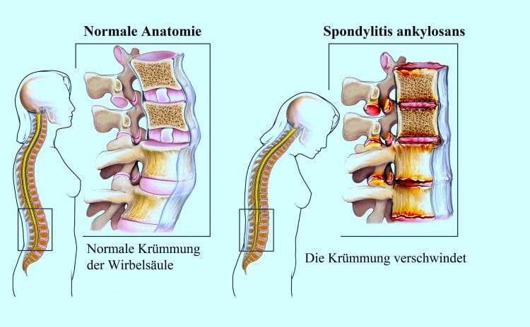 Spondylitis ankylosans