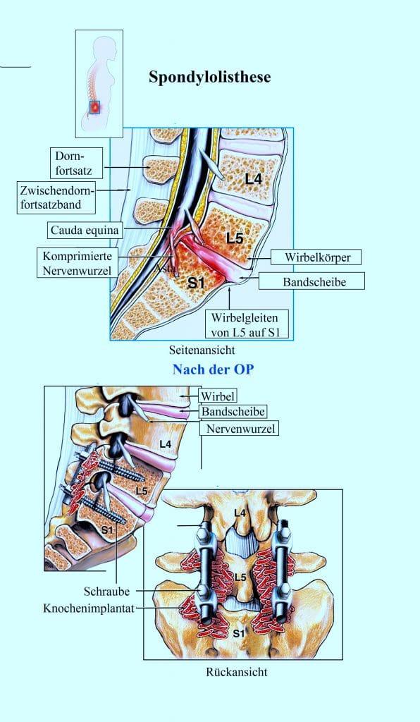 Spondylolisthese
