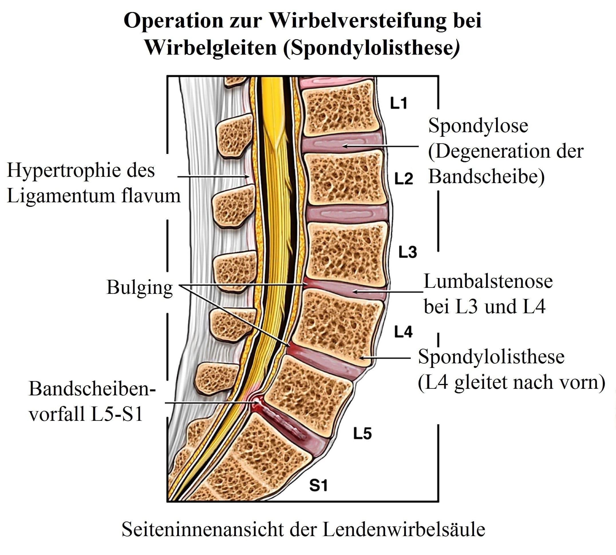 Groß L 4 Wirbel Zeitgenössisch - Physiologie Von Menschlichen ...