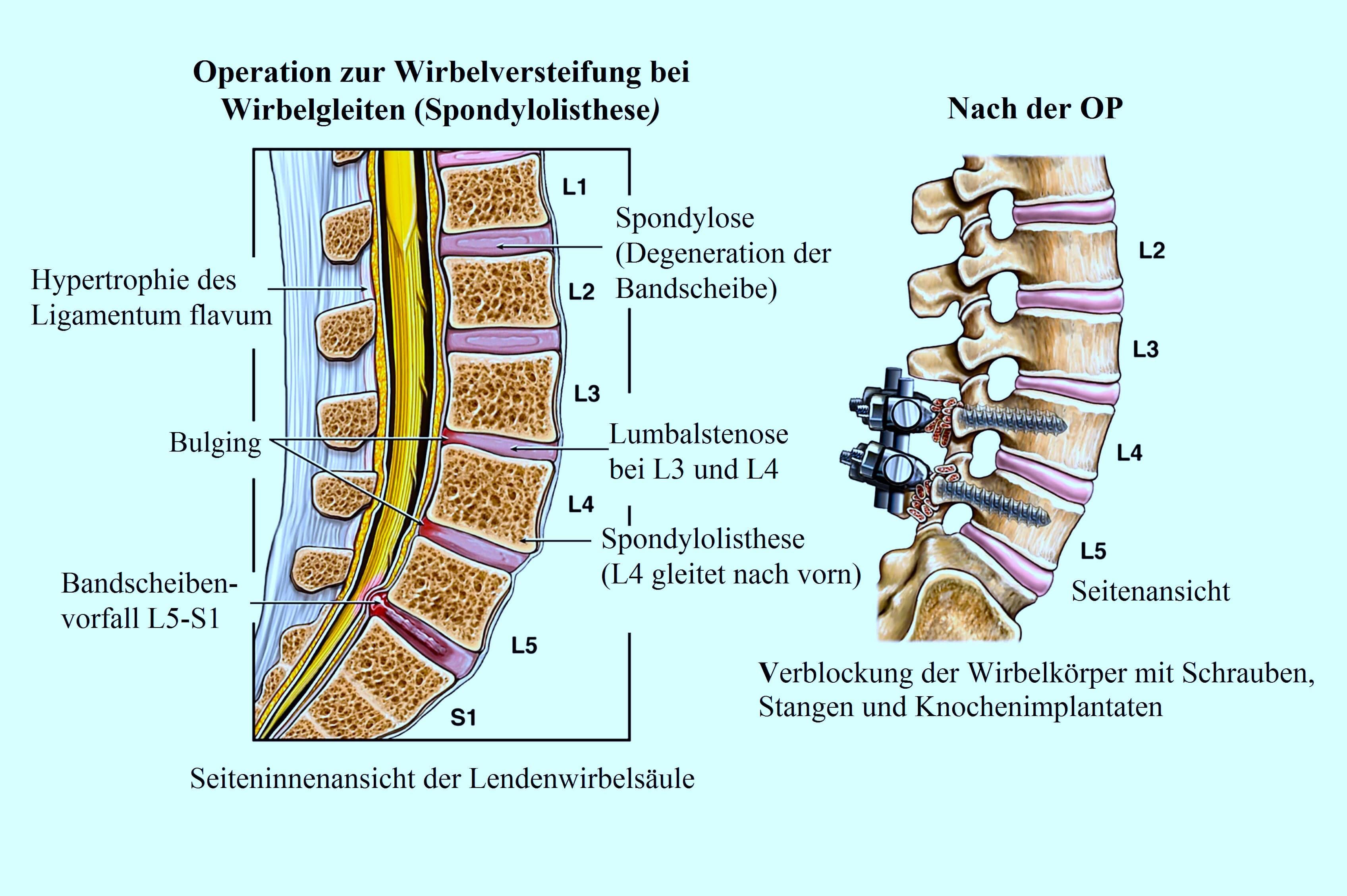Fantastisch L4 Wirbel Ideen - Anatomie Und Physiologie Knochen ...