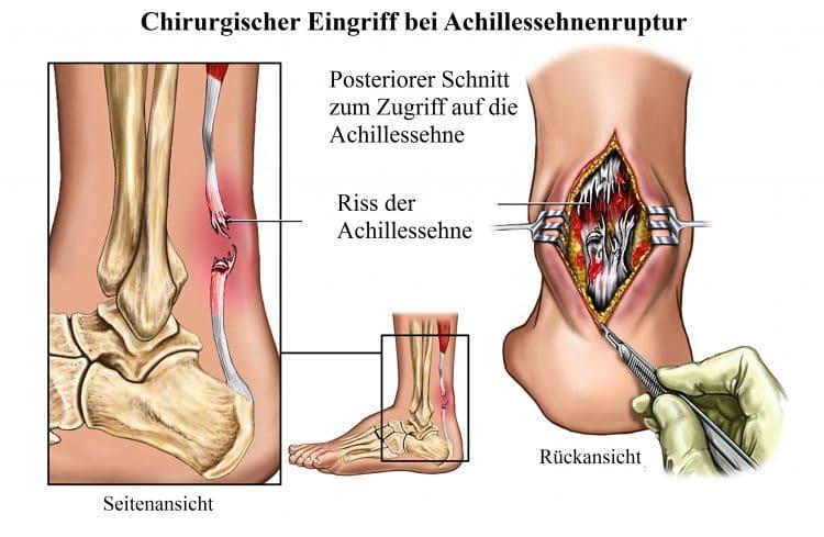 Achillessehnenruptur-Chirurgischer Eingriff, Riss