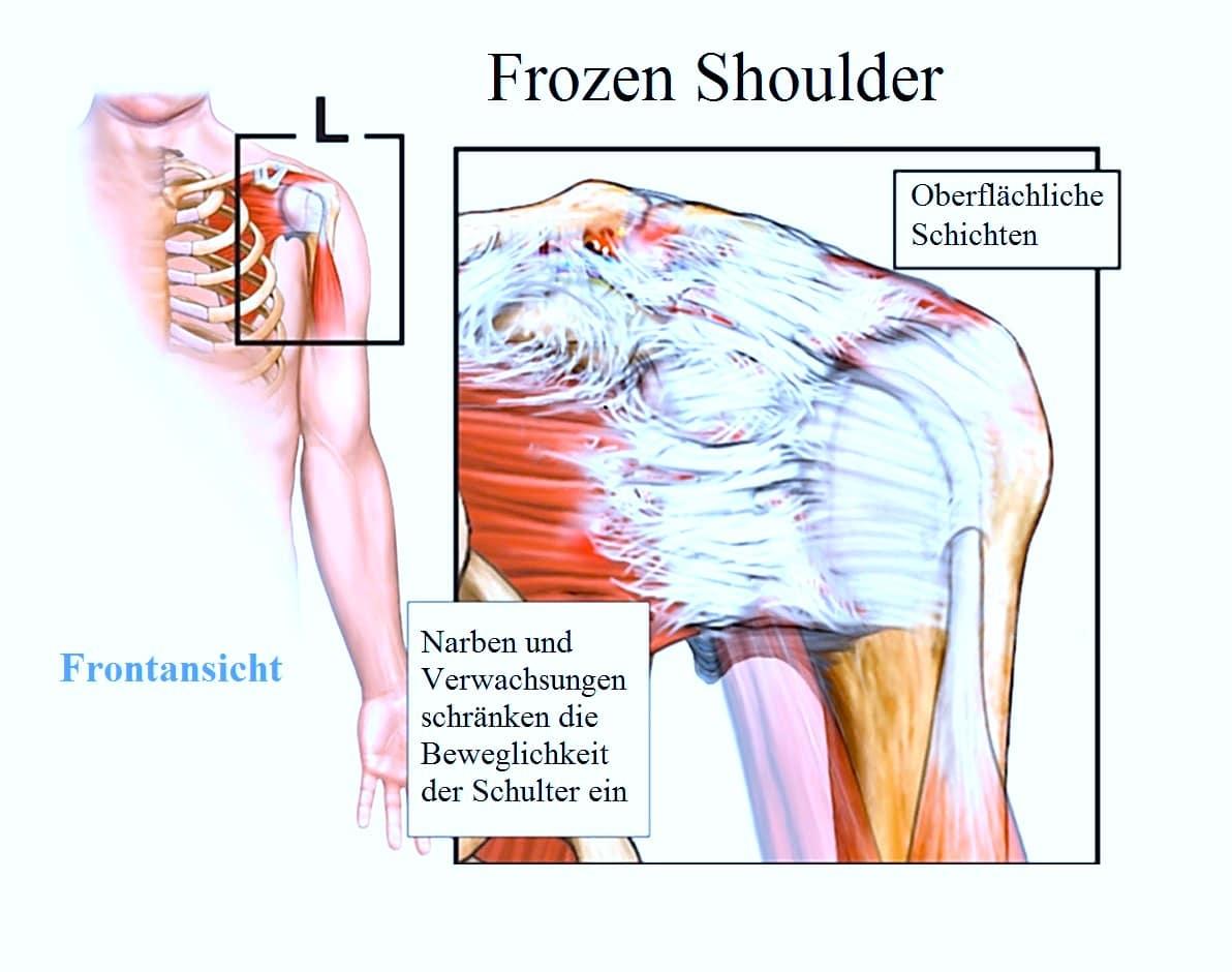 Frozen Shoulder, Therapie, Behandlung, Physiotherapie, Symptome, Übungen