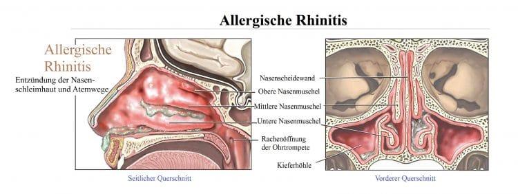Allergische, Rhinitis, Entzündung, Nasenschleimhaut