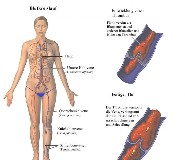 Blutkreislauf, Herz, Vene. Thrombus