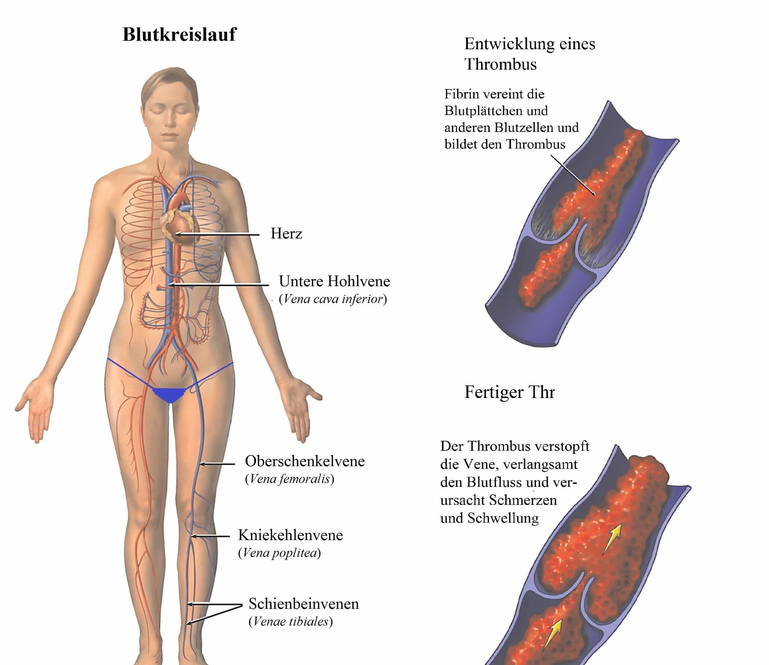Blutkreislauf, Herz, Vene. Thrombus - Symptome und Behandlung