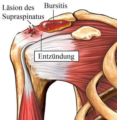 Schmerzen Im Brustmuskel Und Achselhöhle