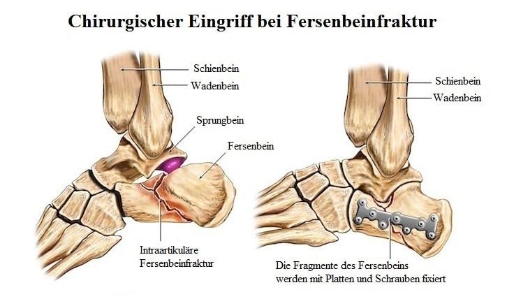 Chirurgischer, Eingriff, Fersenbeinfraktur