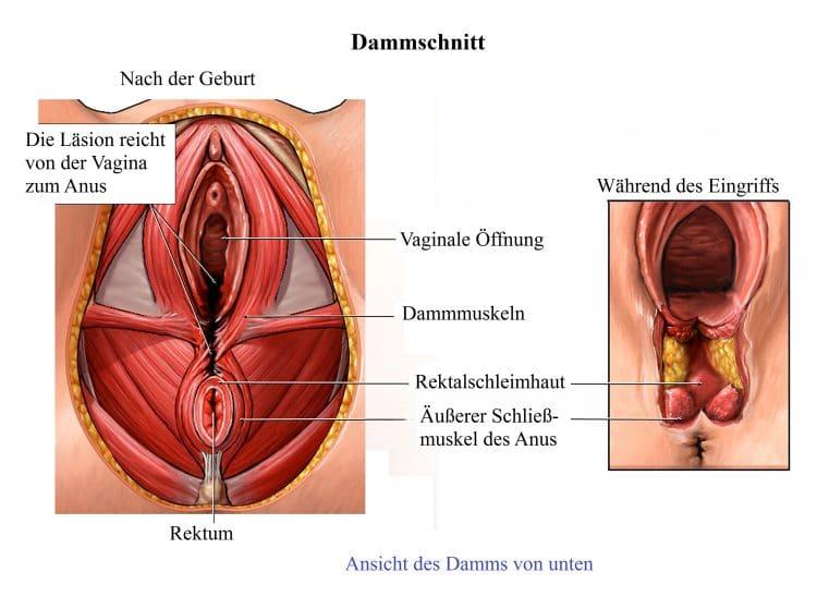 Dammschnitt, Geburt Schließmuskel, Anus