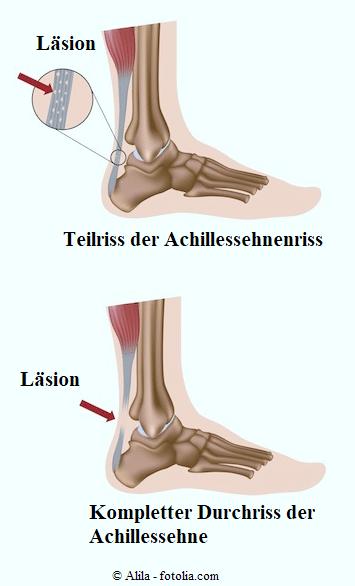 Durchriss der Achillessehne