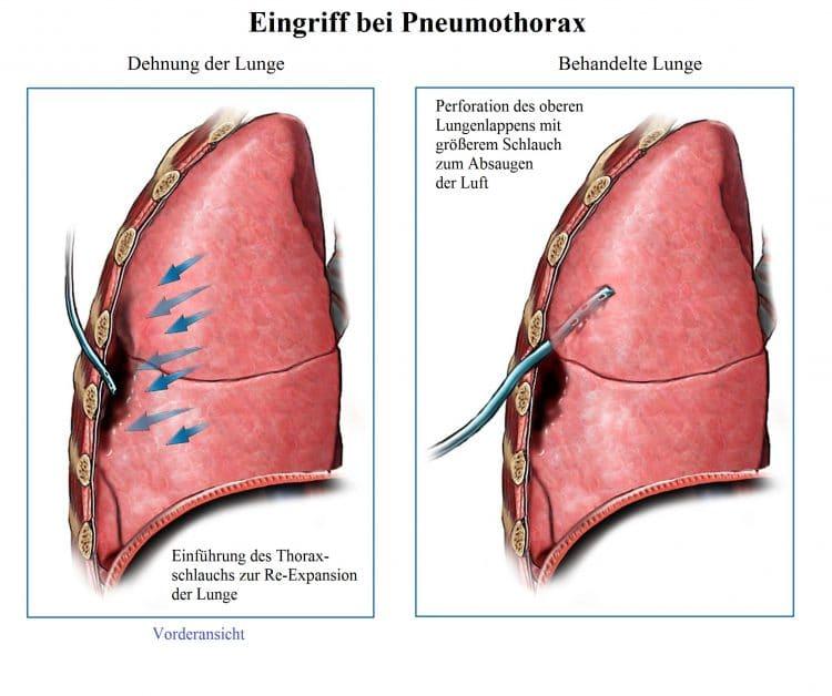 Eingriff, Pneumothorax, Schlauch, Expansion