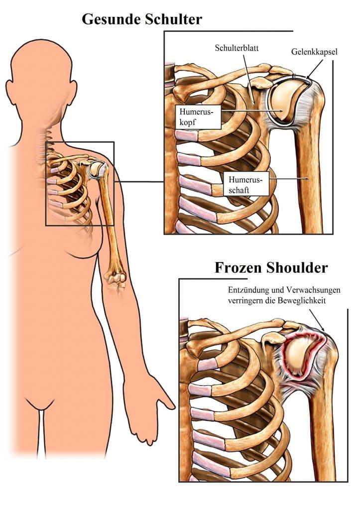 Eingriff bei Frozen, Shoulder