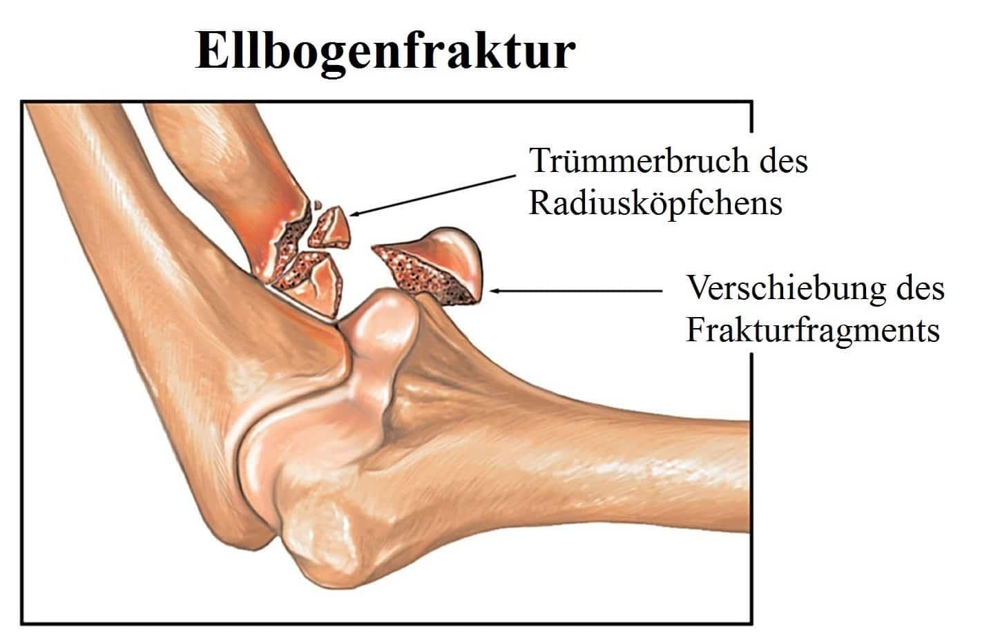 Proximale Radiusfraktur, Physiotherapie, Kind, distal, Behandlung ...