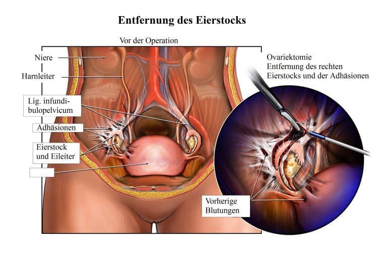 Entfernung des Eierstocks, Ovariektomie