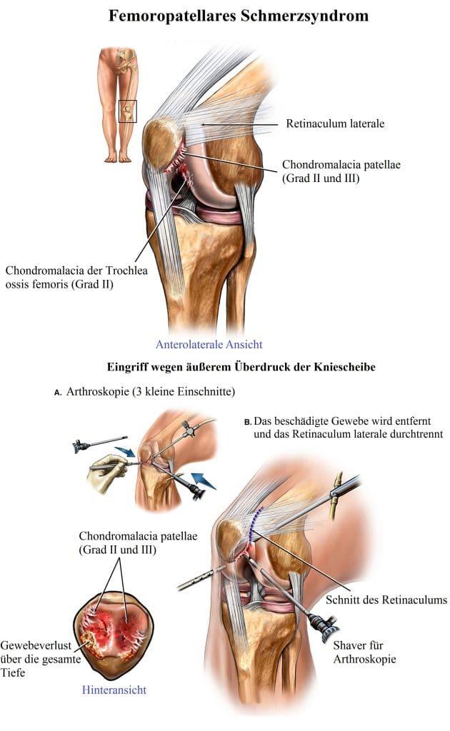 Femoropatellares, Schmerzsyndrom, Knorpel, Chondromalacia
