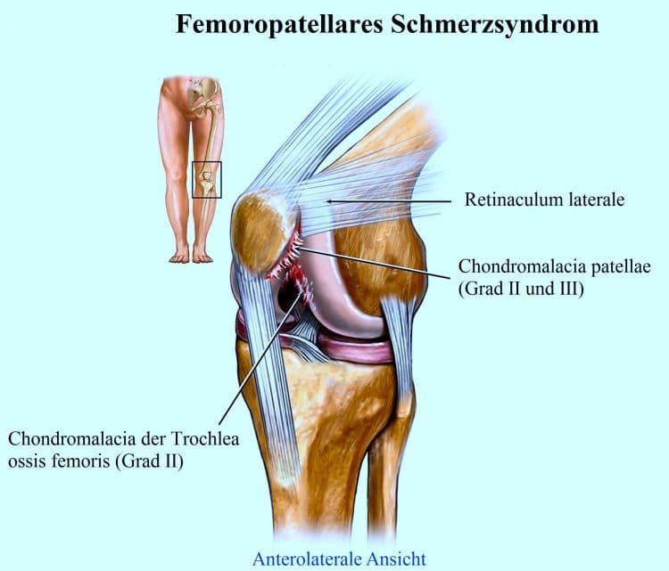 Knieschmerzen an der Außenseite