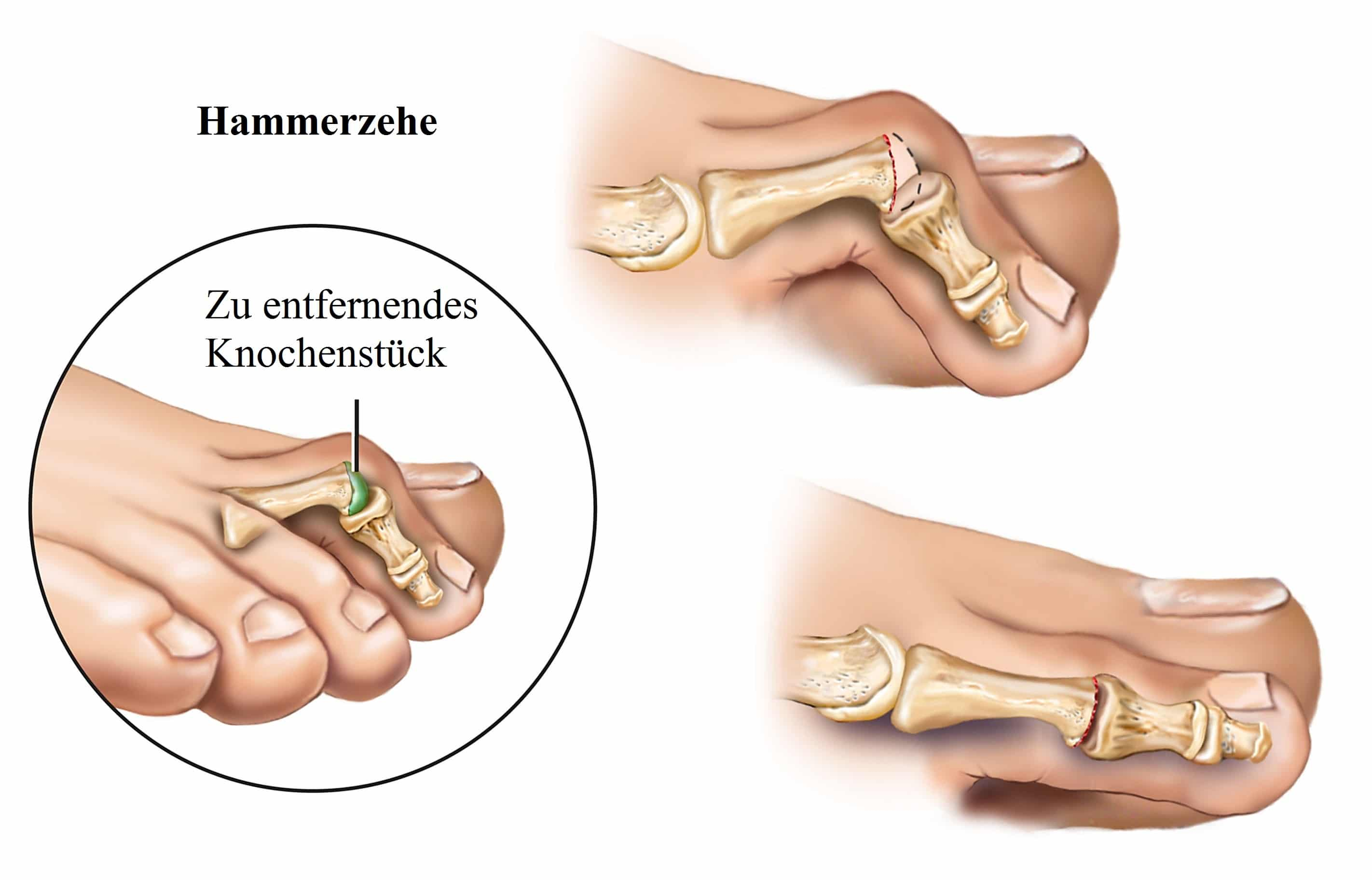 Hammerzehe, Knochenstück
