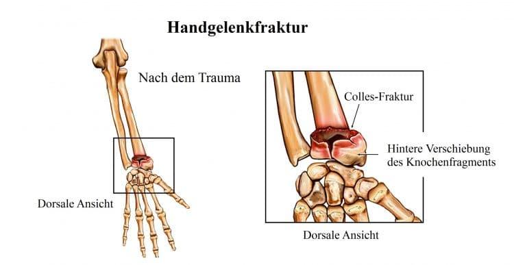 Handgelenkfraktur, Colles, Speiche, Mittelhandknochen