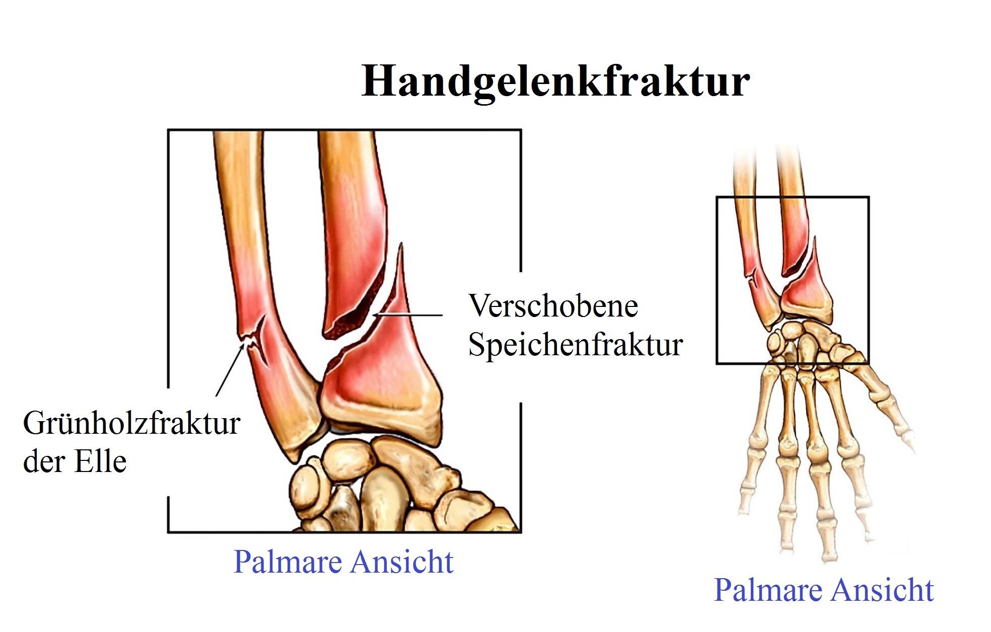 Fein Unterarm Sehnen Fotos - Anatomie Und Physiologie Knochen Bilder ...