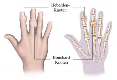 eberden, Knoten, Bouchard